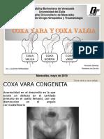 Coxa Vara y Coxa Valga Fernando
