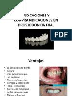 Tema 4. Indicaciones y Contraindicaciones en Prostodoncia Fija