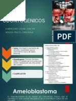Ameloblastoma.
