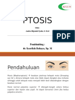 PPT PTOSIS