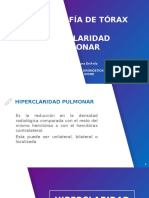 Hiperclaridad Pulmonar Rx