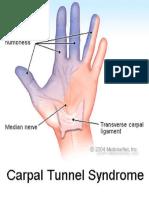 Sindrom Tunel Carpian - STC