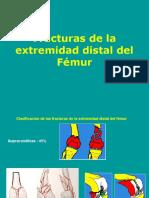 Fractura Del Extremo Distal Del Femur