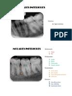Dentoalveolares