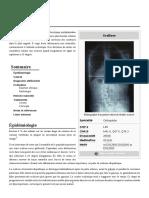 Scoliose.pdf