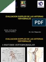 Evalucion Doppler de Las Arterias Vertebrales (1)