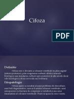 Cifoza