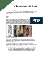 Entendiendo El Proceso de Curación de Una Herida