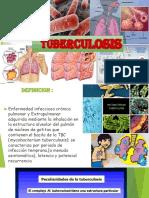 EXPO GUIA DE TB.pptx