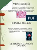 Arter i Olo Sclerosis