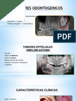TUMORES ODNTOGENICOS EPITELIALES_RADIOLOGÍA III.pptx