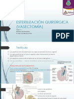 Vasectomia ppt