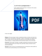 What is a P.I.v.D or Prolapsed Disc