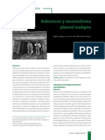 Asbestosis y mesotelioma pleural maligno