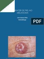 01. Cancer de Piel No Melanoma
