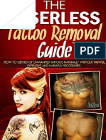 1 the Laserless Tattoo Removal Guide