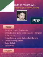 Sindrome de-prader-willi (1)