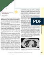 Atlas de Sindromes Vasctuliticos