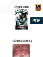 Cirugia-Bucal-Pediatrica