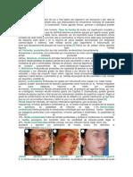 Mecanismo de La Cicatrización Normal