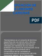 Nomenclatura y Clasificacion de Las Lesiones Cariosas-convertido