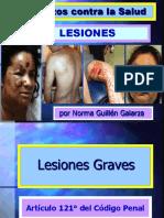 6ta SEMANA_D.penal Especial_Lesiones (1)