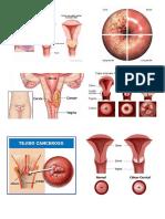 La Obesidad y Cancer de Cervix