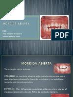Mordida Abierta (2)