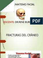 Traumatismo Facial Final 170901215052