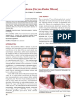 Ramsay Hunt Syndrome (Herpes Zoster Oticus).pdf