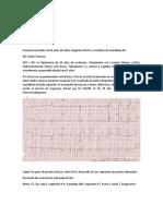 EKG por equipos.docx