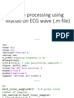 Image Processing of ECG Wave Using Matlab