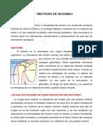 Informacion Protesis Hombro.definitiva Fid128