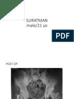Suratman Open Fracture Tibia Fibula + Closed Femur