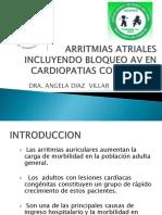 ARRITMIAS ATRIALES INCLUYENDO BLOQUEO AV EN CARDIOPATIAS CONGENITAS