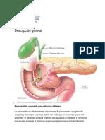 Pancreatitis Sintomas