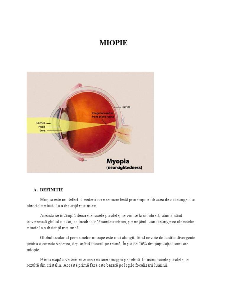 miopia este atunci când nu vede