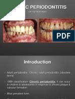 Chronic Periodontitis-presented by Dr Vatsala