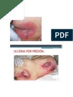 Investigacion de Ulceras