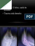 CASO CODO INMADURO.pptx