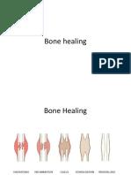 Bone Heal Me