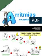 Arritmias II