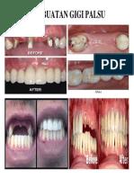 Pembuatan Gigi Palsu