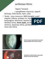 293075297-presentasi-katarak-traumatika.pptx