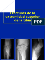 Fracturas Proximales de la tibia