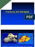 Fracturas Del Astragalo