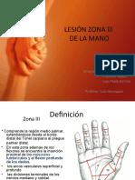 Lesion Zona Lll de La Mano