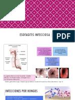 Esofagitis infecciosa3