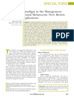 Congenital Melanocytic Nevi