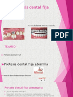 Protesis Dental Fija 1